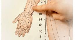 Choix des points d' acupuncture basé sur le diagnostic différentiel, une démarche clinique s'inscrivant dans la logique de l'''evidence based medicine''