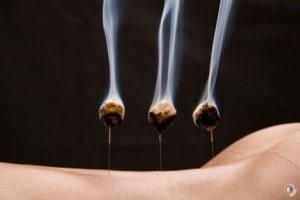 Moxa sur aiguilles d' acupuncture